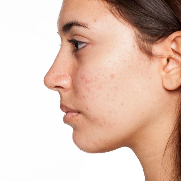 Lee más sobre el artículo Acaba con la piel grasa en verano